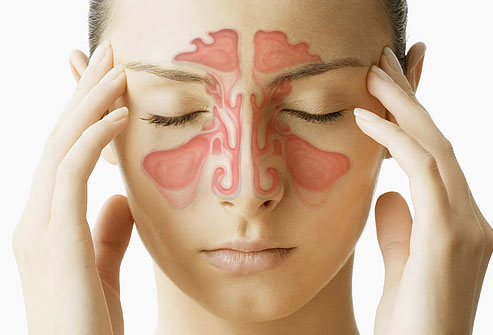 The Most Common Symptoms of a Sinus Infection