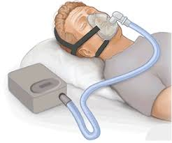 cpap-mask-snoring-nyc-dr-specialist-02